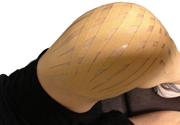 knee pain and swelling kinesiotape