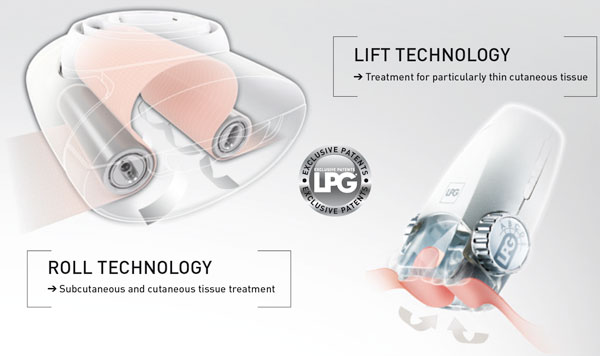 LPG roll technology